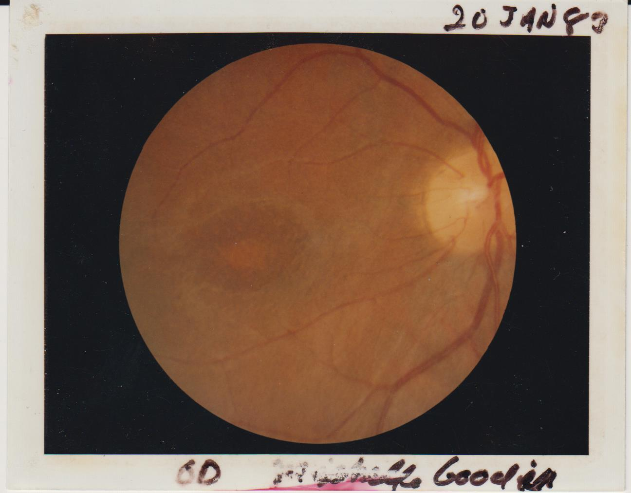Image of Godin's retina in 1983